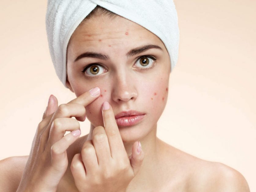 Natural ways to Get Rid of Acne and Pimples   Home remedies and prevention 2021